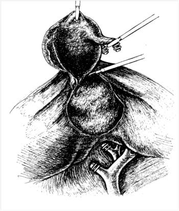 Лапароскопическая холецистэктомия. Окончательный гемостаз в ложе желчного пузыря