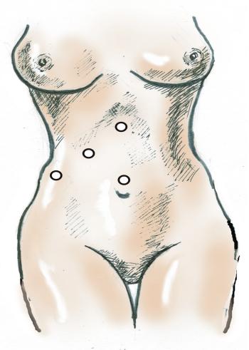 Лапароскопическая холецистэктомия. Точки введения троакаров при лапароскопической холецистэктомии