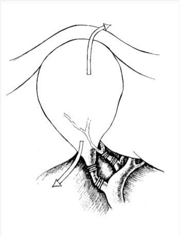 Лапароскопическая холецистэктомия. Направление тракций для лучшей визуализации треугольника Кало