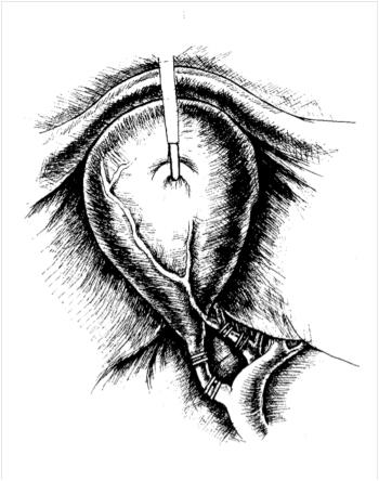 Лапароскопическая холецистэктомия. Клипирование пузырного протока и артерии