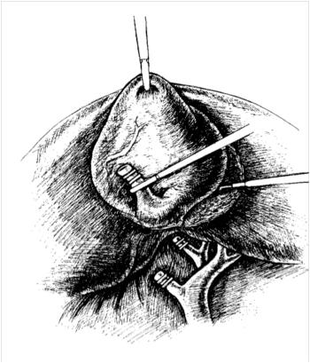 Лапароскопическая холецистэктомия. Выделение желчного пузыря из ложа
