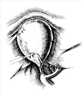 Лапароскопическая холецистэктомия. Пересечение клипированных артерии и протока