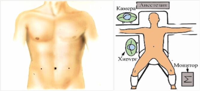 Паховая грыжа - симптомы, последствия, лечение, герниопластика паховой грыжи