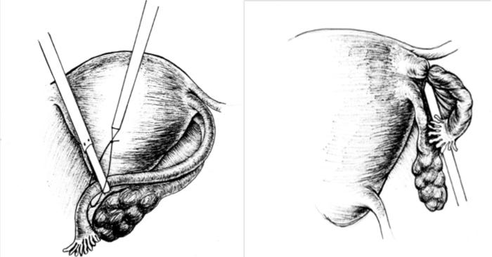 ампулы маточной трубы при