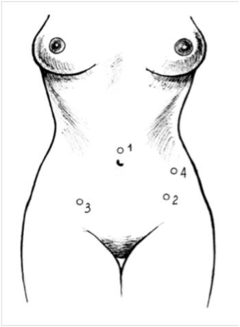 Эндометриоз кишки мочевого пузыря лечение операция лапароскопия точки введения троакаров гистерэктомия прямая кишка