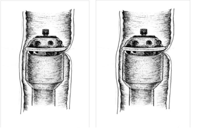 Рисунок Эндометриоз кишки мочевого пузыря лечение операция лапароскопия сегментарная резекция толстой кишки с циркулярным степлером