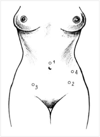 Рисунок Удаление матки рак аденомиоз операция лапароскопия ампутация экстирпация матки точки введения троакаров