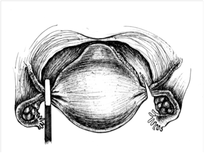 Рисунок Удаление матки рак миома аденомиоз операция лапароскопия ампутация экстирпация матки мобилизация связочного аппарата