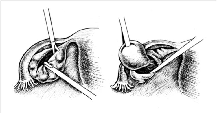 Рисунок Киста яичника эндометриодная киста опухоль яичника операция лапароскопия этапы лапароскопической цистэктомии