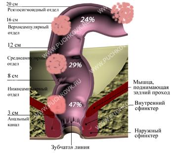 Рак прямой кишки трансанальная