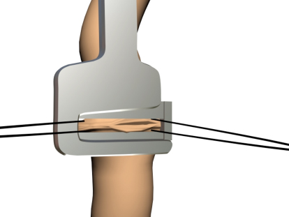 Эндометриоз кишки лапароскопия лечение аппаратный поперечный шов