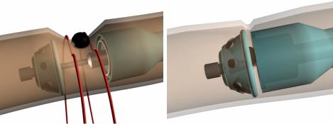 Эндометриоидный очаг очаг эндометриоза лапароскопия лечение циркулярный степлер этап прошивания