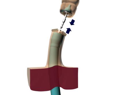 Эндометриоз фото