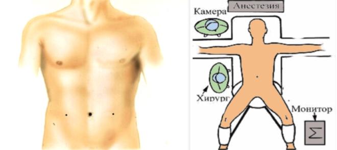 лечение паховой грыжи операция