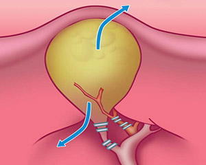 Этапы лапароскопической холецистэктомии— клипирование пузырного протока иартерии