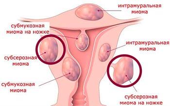Субсерозная миома матки - размеры для операции, лечение