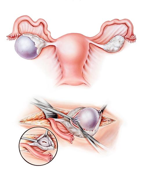 Лапароскопия кисты яичника - лапароскопическая операция по удалению кисты яичника.